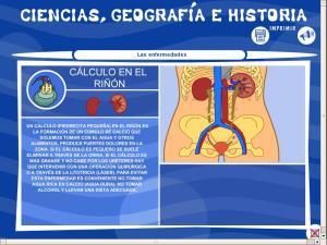 Cálculos en el riñón