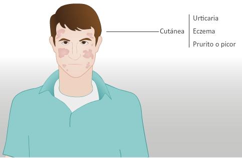 Alergias alimentarias (consumer.es)