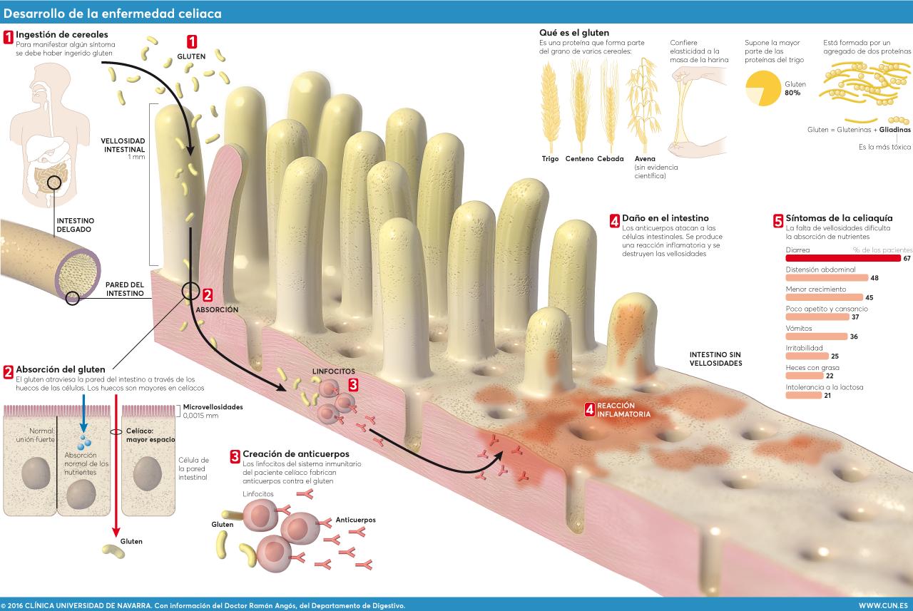 ¿Sabes en qué consiste la Enfermedad Celiaca? Infografía