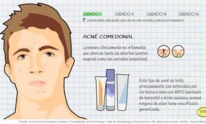 ¿Por qué aparece el acné en la adolescencia? Educación para la Salud