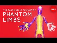 A fascinante explicación científica que hai detrás dos membros pantasma