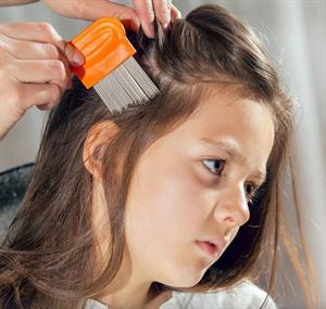 Cómo prevenir los piojos en el cabello de los niños