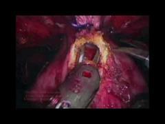 Pasado, presente e futuro da cirurxía robotizada